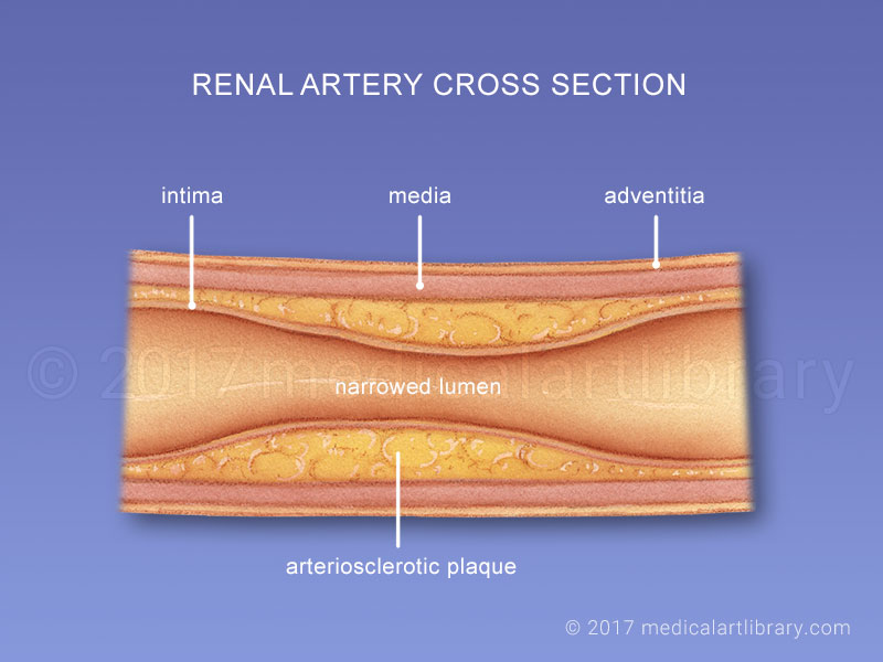 Atherosclerosis of the Renal Artery