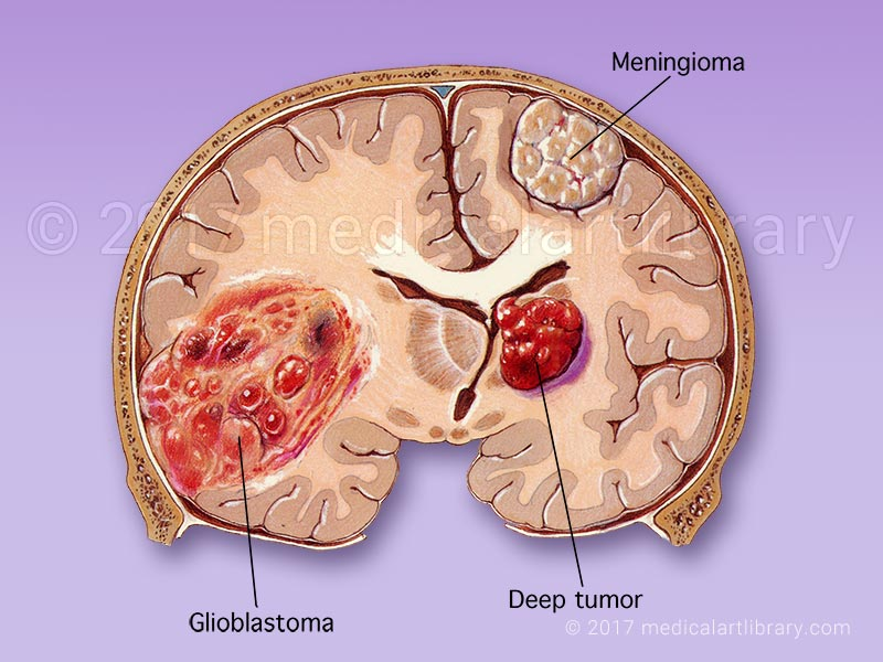 brain tumor, glioblastoma and meningioma