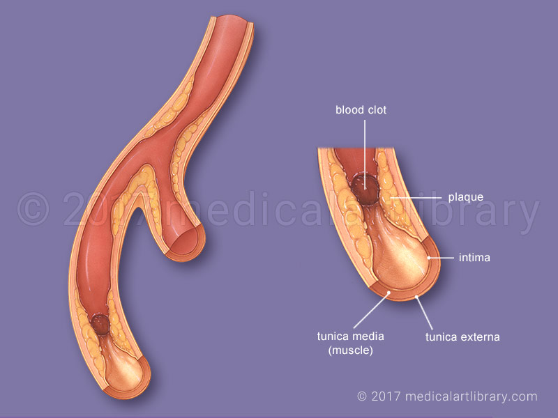 Coronary artery disease medical illustration
