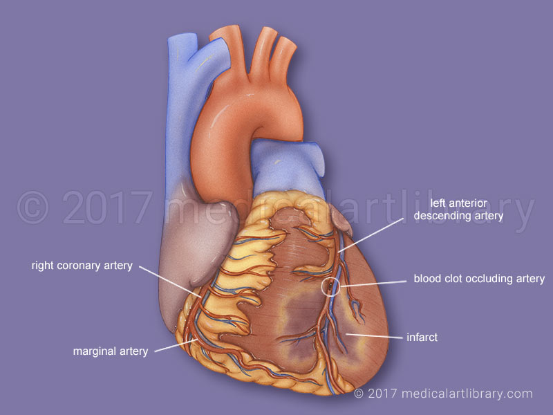 Myocardial infarct-Heart attack medical illustration