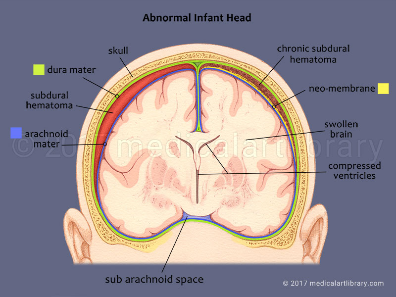 Shaken Baby Subdural Hematoma medical illustration