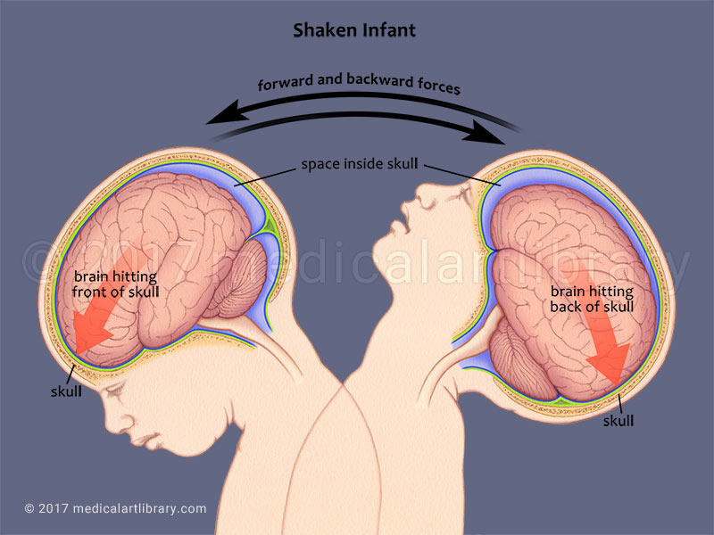 Shaken Baby medical illustration