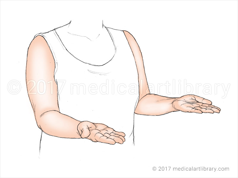 Anatomical Illustration of supination of the forearm and hand