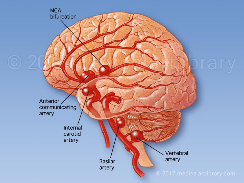 Brain Aneurysm Medical Art Library