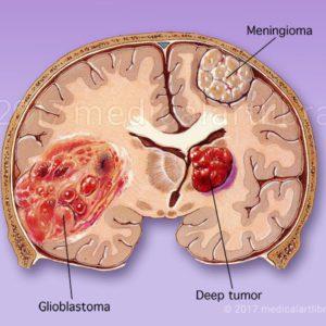 Brain Tumor, Glioblastoma, Meningioma