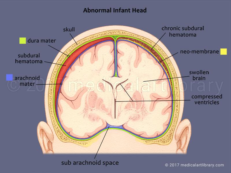 Shaken Baby - Subdural Hematoma